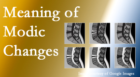 Hollstrom & Associates Inc sees many back pain and neck pain patients who bring their MRIs with them to the office. Modic changes are often seen.