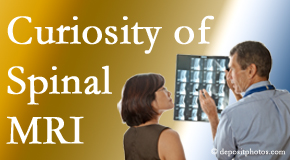 Largo MRIs for spinal stenosis may be revealing…or confusing.