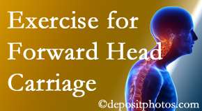Largo chiropractic treatment of forward head carriage is two-fold: manipulation and exercise.