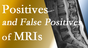 Hollstrom & Associates Inc carefully chooses when and if MRI images are needed to guide the Largo chiropractic treatment plan.